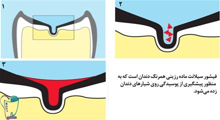 چگونگی انجام عمل فیشور سیلانت