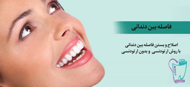 اصلاح و بستن فاصله بین دندانی با/ بدون ارتودنسی