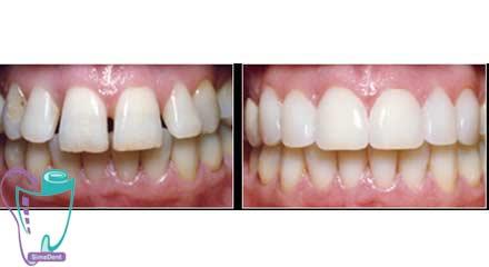 بستن فاصله بین دندانی | اصلاح با یا بدون ارتودنسی