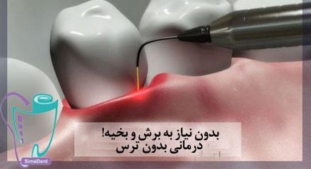 میکرو جراحی لثه (جراحی میکروجینجیوال)