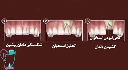 ضرورت پیوند استخوان قبل از کاشت دندان