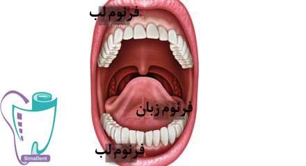فرنکتومی | جراحی انواع فرنوم، چسبیدن و بند لب بالا و پایین و زبان