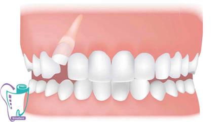 دندان غائب