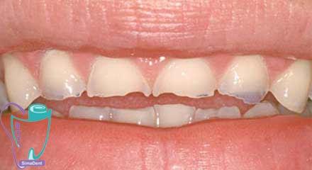 ساییدگی مینای دندان