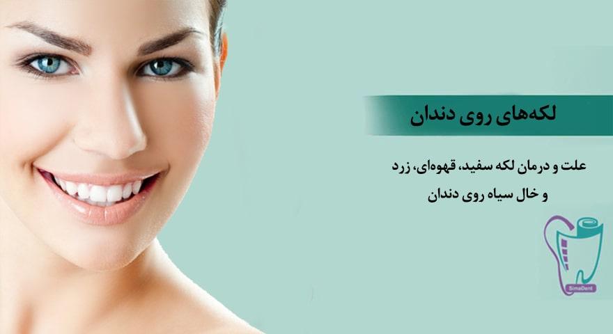 علت و درمان لکه سفید، قهوهای، زرد و خال سیاه روی دندان