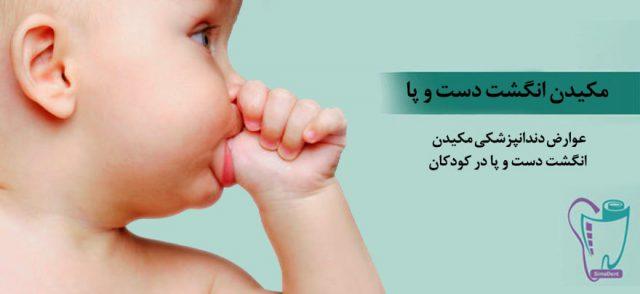 عوارض دندانپزشکی مکیدن انگشت دست و پا در کودکان