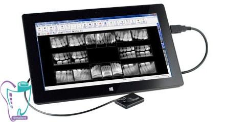 عکس opg، رادیولوژی و رادیوگرافی دیجیتال دندان