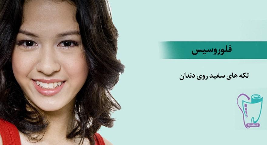 فلوروسیس (لکه های سفید روی دندان) کودکان علت و درمان