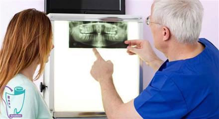 کیست دندان، لثه، دهان و ریشه دندان: درمان و علت
