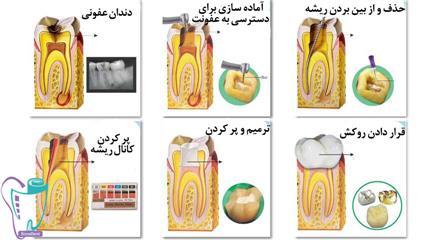 عصبکشی دندان در دوره بارداری