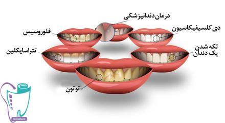 علت ایجاد لکههای مختلف روی دندان