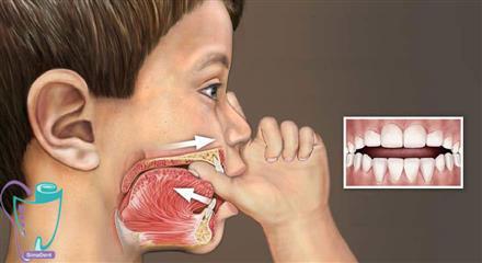 آسیب دیدن دندانها در اثر مکیدن انگشت شست و پستانک