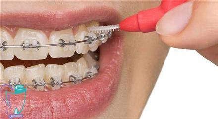 ابزارهای کمکی برای حفظ بهداشت دندان در حین درمان ارتودنسی