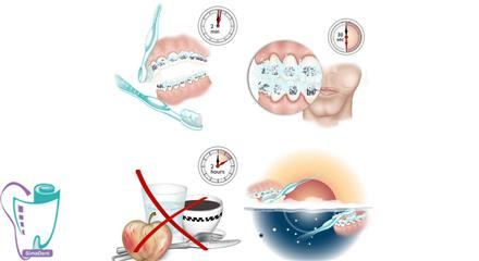 نحوه صحیح مسواک زدن در حین درمان ارتودنسی