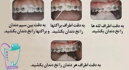 نحوه صحیح استفاده از نخ دندان در حین درمان ارتودنسی