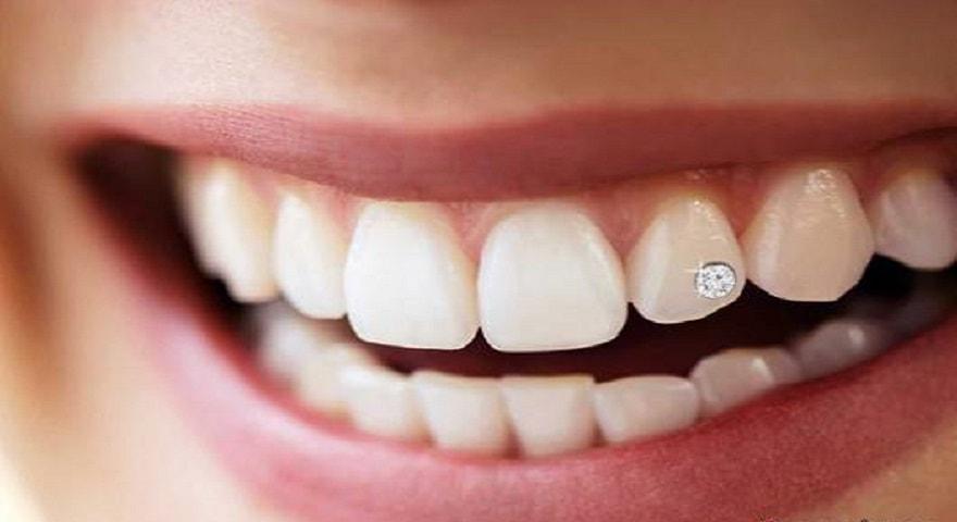 کاشت نگین روی دندان کودکان توسط دندانپزشک کودکان