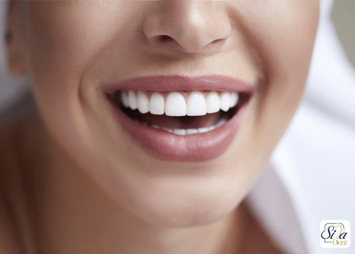 درمان کجی دندان بدون ارتودنسی