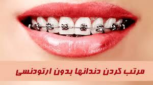درمان ناهنجاری دندان بدون نیاز به ارتودنسی
