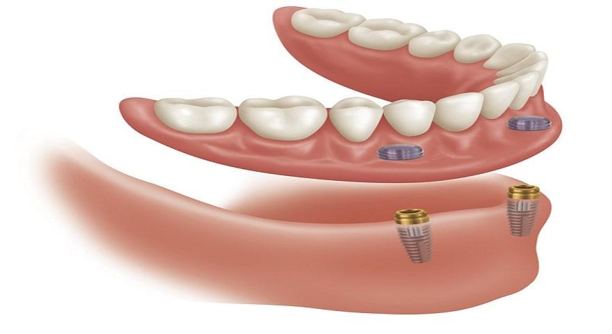 کیست چیست؟ درمان کیست ریشه دندان