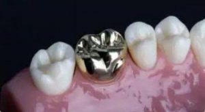 روکش های دندانی