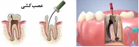 عصب کشی دندان - هزینه عصب کشی دندان