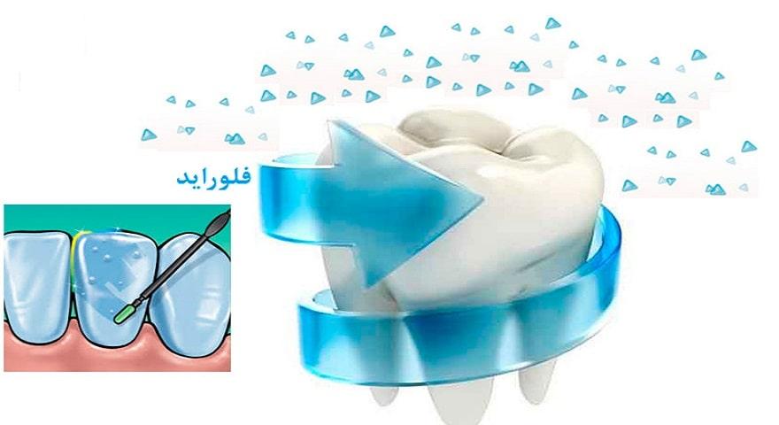 فلوراید دندان - فواید مصرف فلوراید