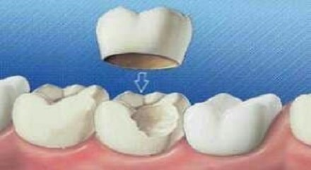 روکش دندان - انواع روکش های دندان