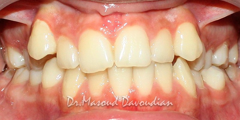 نامرتبی شدید دندان ها - کیس 6