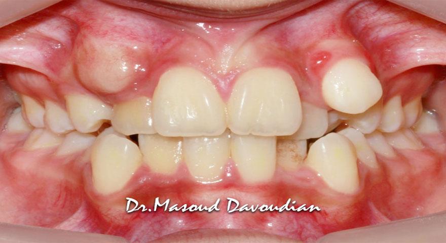 نامرتبی شدید دندان ها - کیس 2