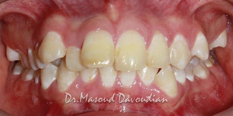 نامرتبی شدید دندان ها - کیس 4