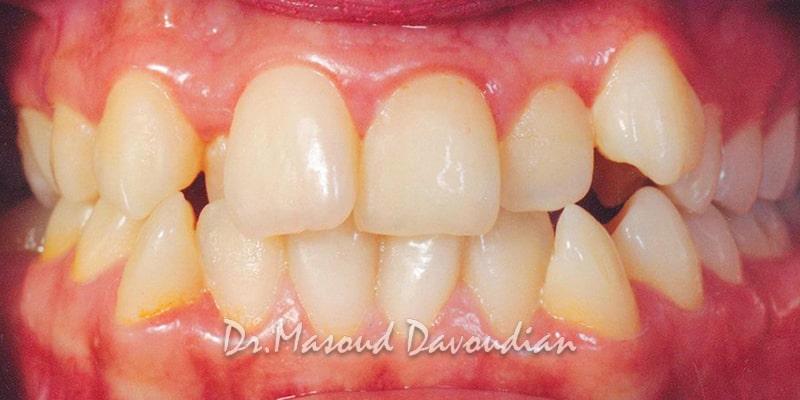 نامرتبی شدید دندان ها - کیس 5