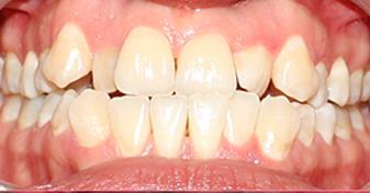 آندربايت دندان