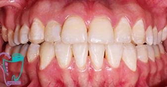 اصلاح آندربايت دندان