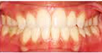 اصلاح اپن بايت دندان