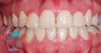 اصلاح به هم فشردگي يا ازدحام دندان