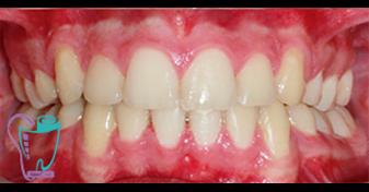 اصلاح ديپ بايت دندان