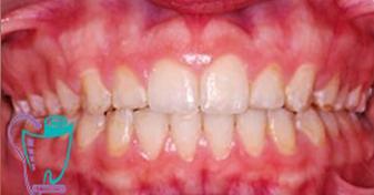 اصلاح فاصلهدار بودن دندانها