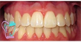 اصلاح نامتقارن بودن دندانها