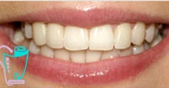 اصلاح چرخش دندانها