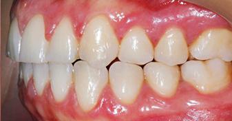 اصلاح کراس بايت دندان