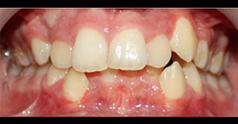 ديپ بايت دندان