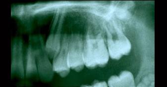 رادیوگرافی دندان نهفته