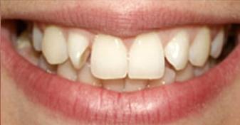 چرخش دندانها