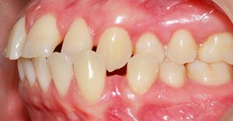 کراس بايت دندان