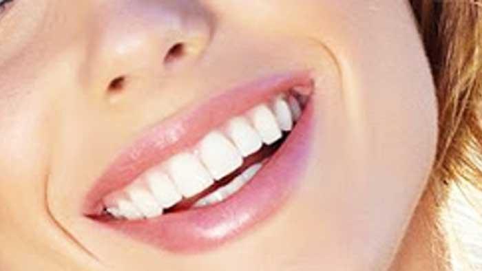 کمپین لبخند زیبا