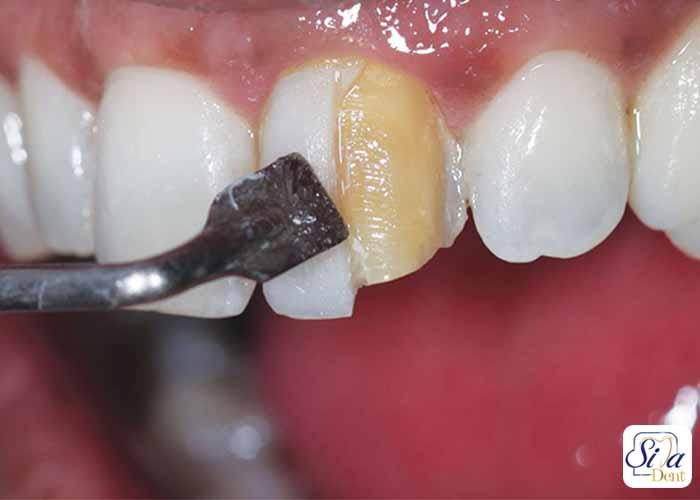 کامپوزیت دندان چیست 7