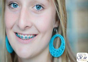 Colored orthodontics1