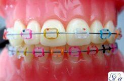 Colored orthodontics3