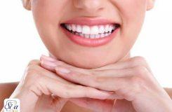 Dental composite 4