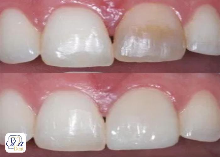 Dental composite1